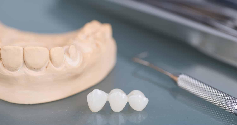 What is a Dental Bridge?