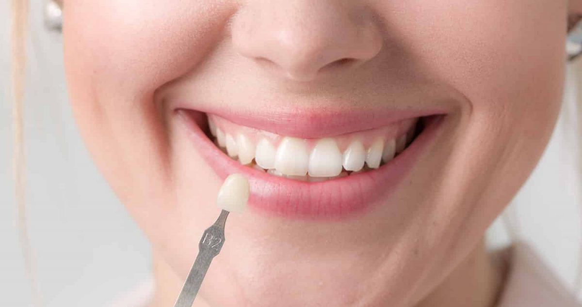 When to Consider Porcelain Veneers
