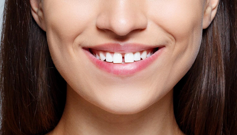 Fixing Gap Teeth