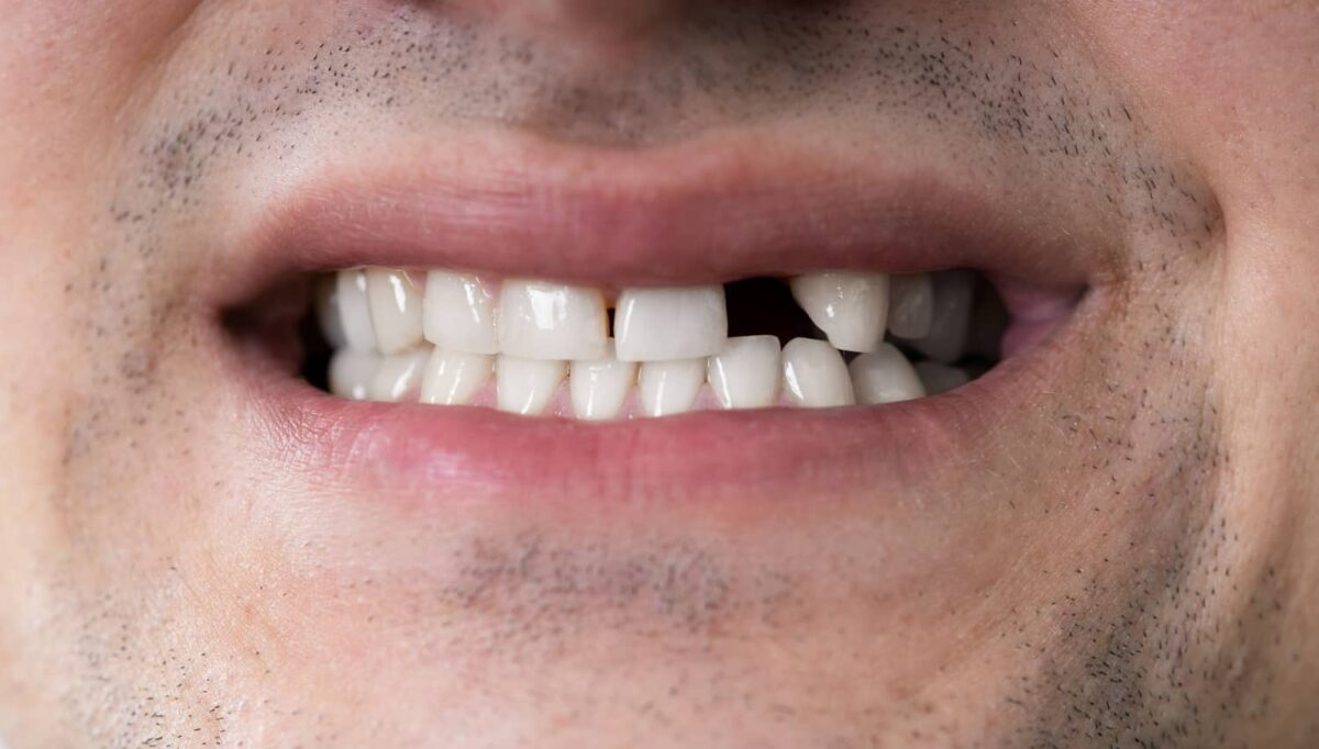 Solutions for a Missing Tooth: Bridge vs Implant